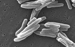 Mycobacterium tuberculosis. Imagen Janice Carr Content Providers(s): CDC/ Dr. Ray Butler; Janice CarrTimVickers at en.wikipedia [Public domain], from Wikimedia Commons