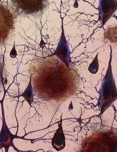 Pérdida de conexiones neriviosas entre las células de los pacientes con Alzhéimer. Imagen: Instituto Nacional de Envejecimiento (NIA), EEUU