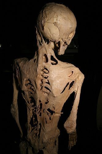 Esqueleto de un paciente afectado por fibrodisplasia osificante progresiva. Imagen: Joh-co (talk · contribs) (Own work) [CC BY-SA 3.0 (http://creativecommons.org/licenses/by-sa/3.0)].