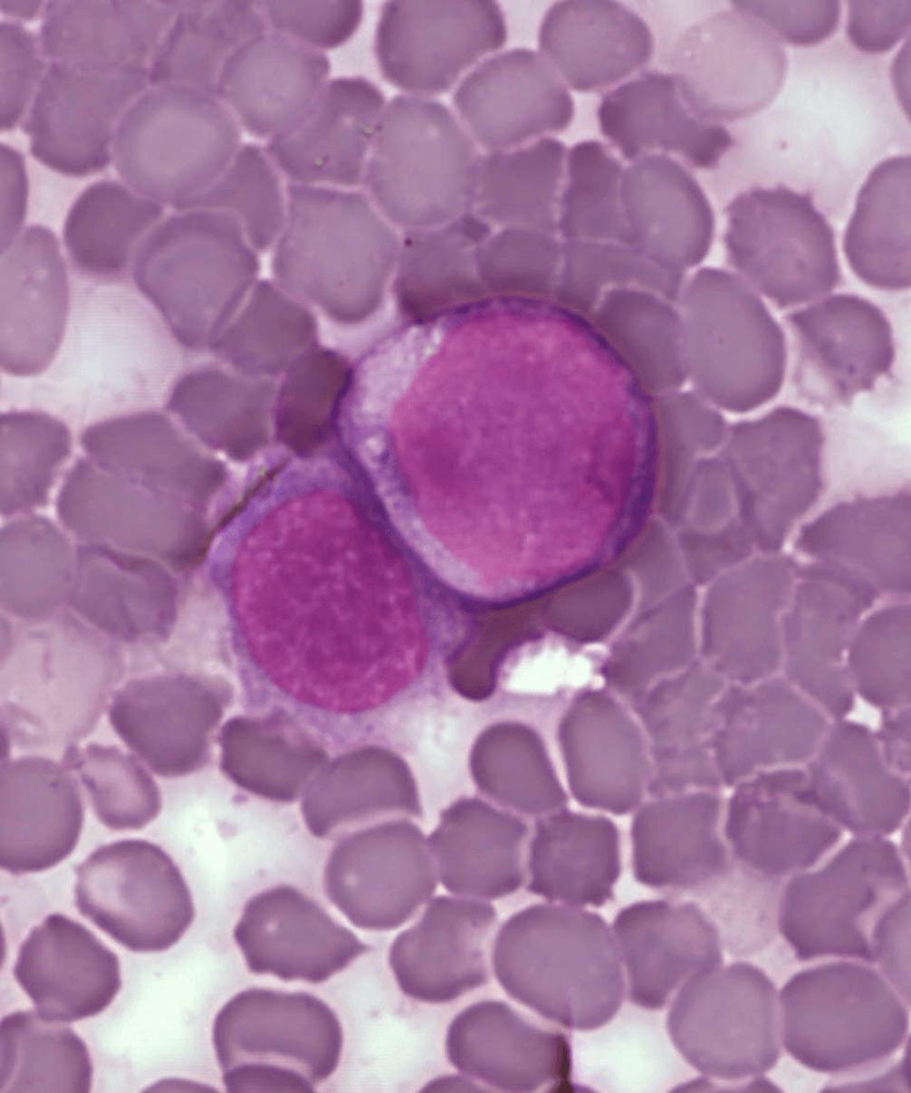 Células de leucemia. Imagen: A Surprising New Path to Tumor Development. PLoS Biol 3(12): e433. doi:10.1371/journal.pbio.0030433 CC-BY-2.5