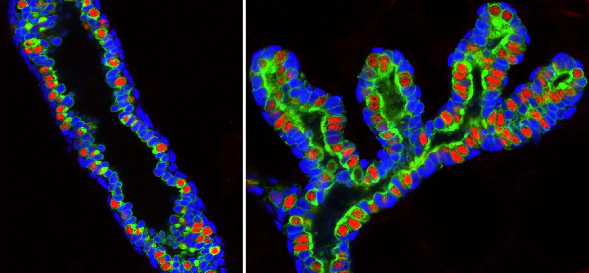 En la glándula mamaria, Sox10 (en azul) se expresa en las células con gran actividad de célula madre y no en las células maduras  (marcadas en rojo por la presencia del receptor de la progesterona). Imagen cortesía del Salk Institute for Biological Studies.