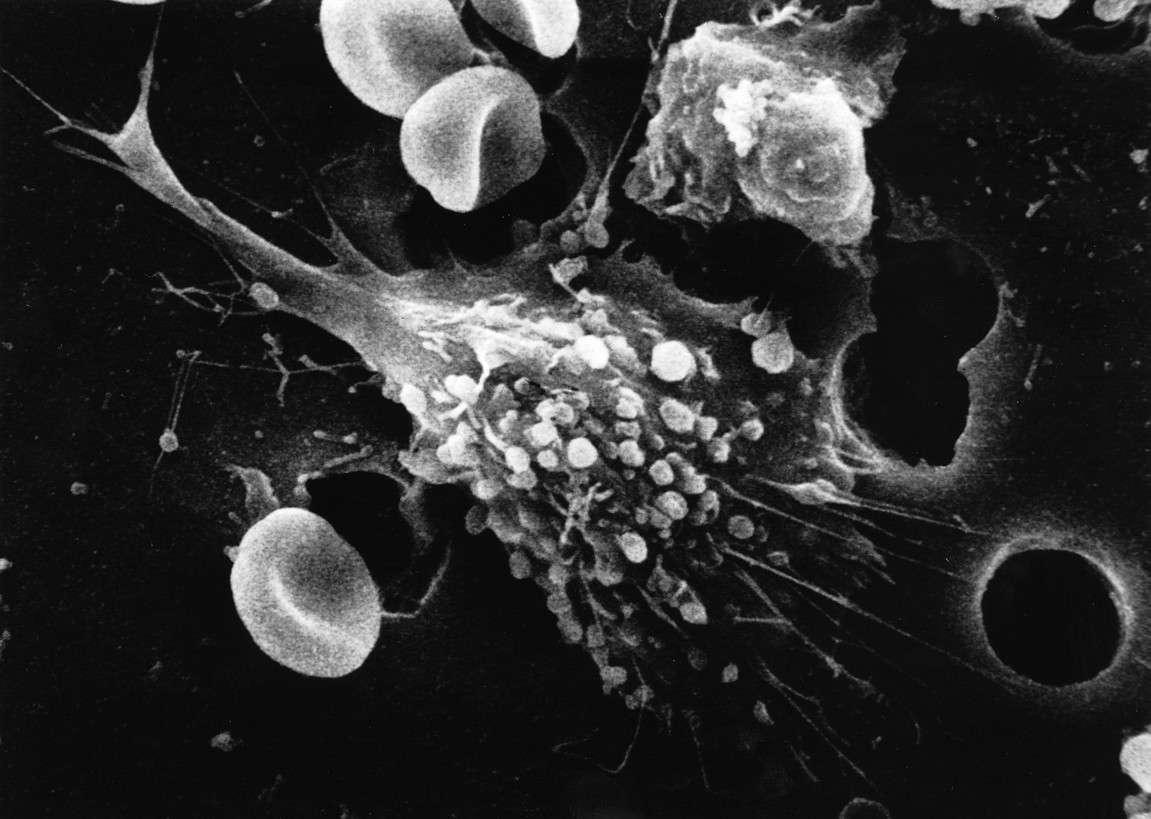 En el caso del cáncer, el número de mutaciones que se adquieren tras el inicio del proceso tumoral no dependen de la edad, sino del tiempo que transcurre entre la primera mutación inductora y la fase de expansión clonal de la enfermedad. Imagen: Célula tumoral migrando. Dr. Raowf Guirguis. National Cancer Institute.