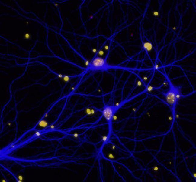 Niveles reducidos de BRCA1 (en rojo) en las neuronas (en azul) de pacientes con Alzhéimer.Imagen: Elsa Suberbielle, Gladstone Institutes.