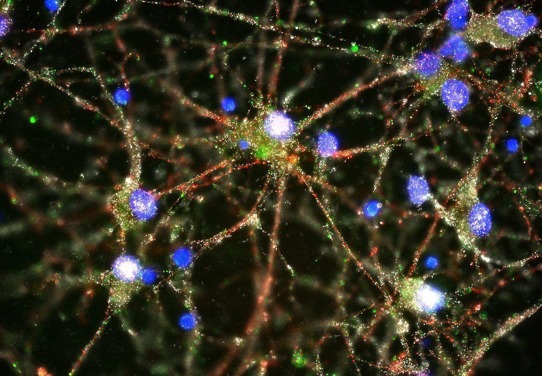 Los investigadores encontraron C4 en las sinapsis de neuronas humanas en cultivo. C4 se muestra en color verde, los cuerpos celulares en azul y las sinapsis en rojo y blanco. Imagen: Heather de Rivera (Laboratorio de McCarroll, Instituto Broad).