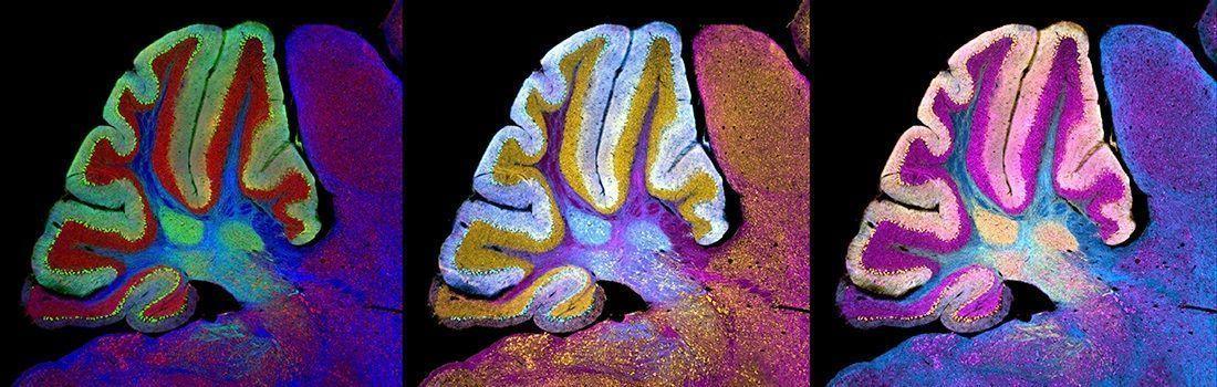 Cerebelos de ratones modelo para la enfermedad Newmann-Pick. Imagen: NICHD/I. Williams. CC BY 2.0. https://creativecommons.org/licenses/by/2.0/.