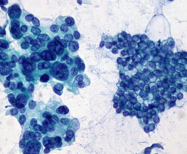 Adenocarcinoma de páncreas a la izquierda, en comparación con epitelio normal a la derecha. Imagen: Ed Uthman (http://creativecommons.org/licenses/by/2.0).