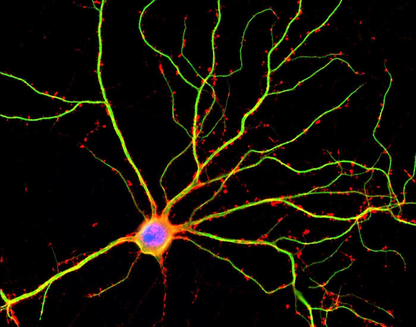 Neurona madura. Imagen: Shelley Halpain, UC San Diego.