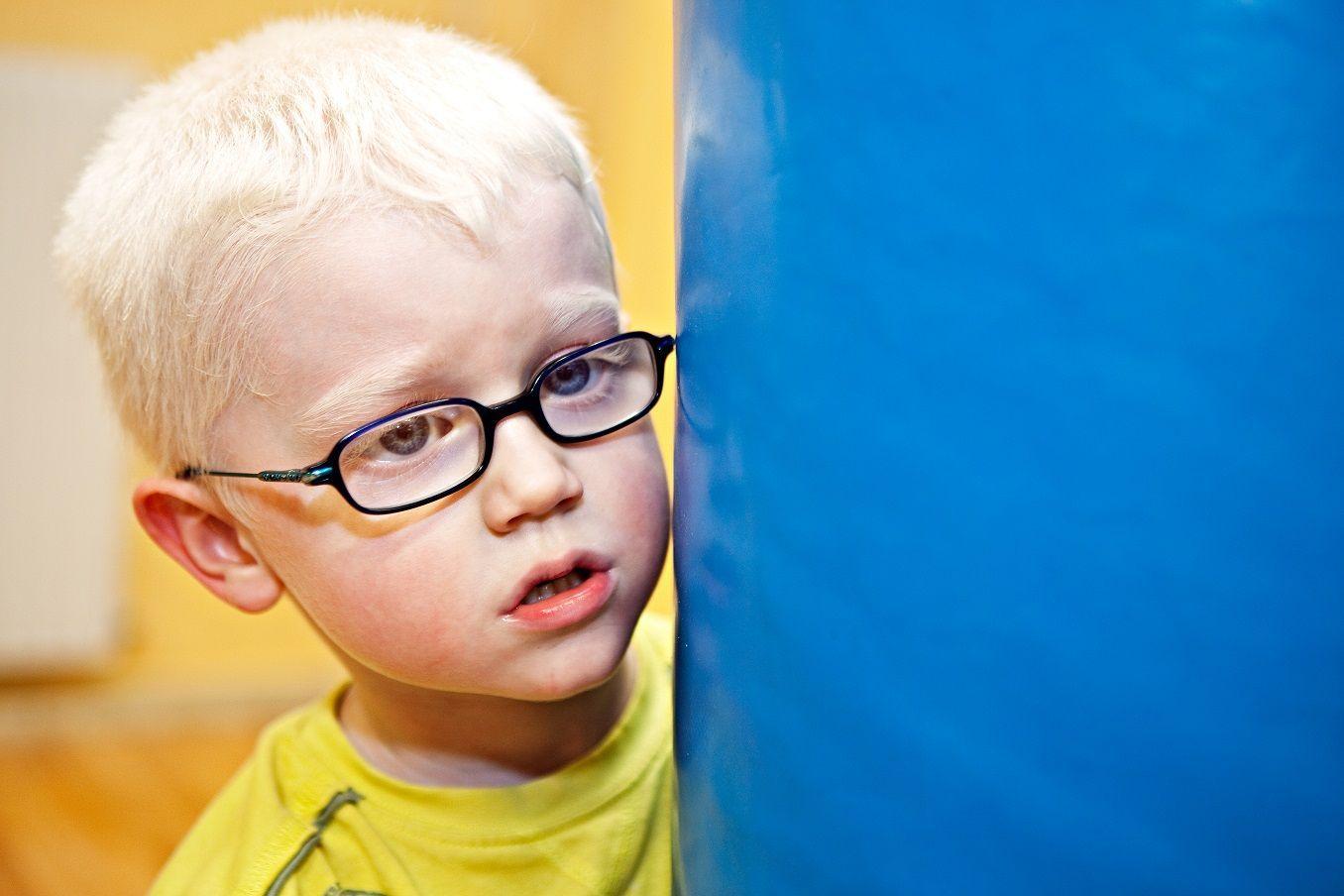 Las personas con albinismo tienen como característica común la discapacidad visual severa. Además pueden manifestar también una alteración en la pigmentación. Fotografía: Ana Yturralde.