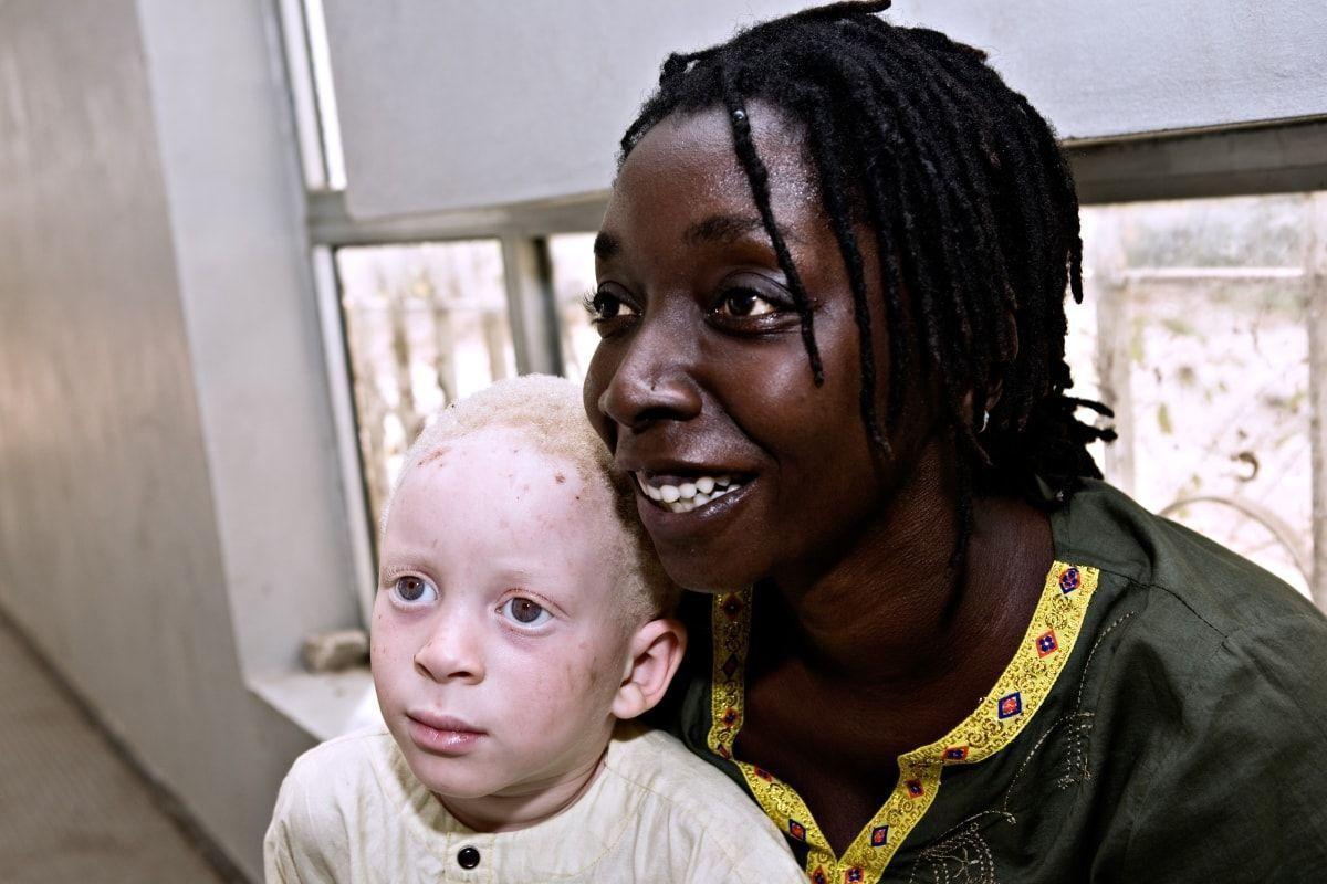 Gracias a la fotógrafa Ana Yturralde el equipo de Lluís Montoliu ha publicado un libro que recoge la situación de la población albina en España y en Senegal y evidencia las diferencias en el acceso a recursos de protección y cuidado para personas con la misma condición genética. Fotografía: Ana Yturralde.