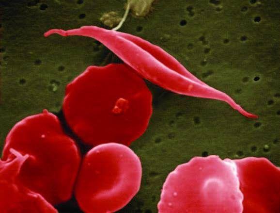 Anemia falciforme y CRISPR. Los pacientes con anemia falciforme producen eritrocitos con forma anómala. En la imagen, eritrocitos normales con forma de disco y eritrocitos falciformes, de forma alargada. Imagen: National Center for Advancing Translational Sciences (NCATS), National Institutes of Health.