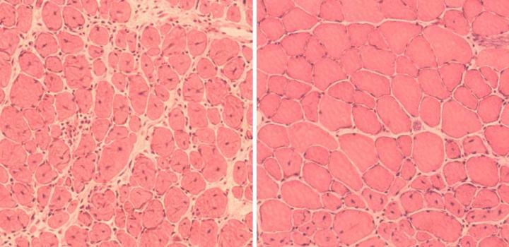 Imagen que refleja que la inducción de reprogramación celular parcial mejoró la regeneración del músculo en ratones envejecidos. A la izquierda se muestra la reparación del músculo dañado en ratones envejecidos y a la derecha la regeneración mejorada en los ratones sometidos a reprogramación. Imagen cortesía del laboratorio de Juan Carlos Izpisúa, Instituto Salk de Estudios Biológicos.