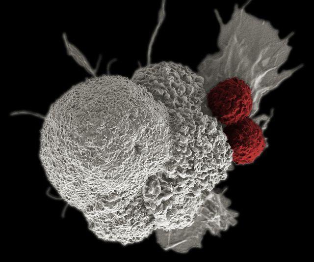 Célula tumoral atacada por dos linfocitos T. Imagen: Rita Elena Serda, Duncan Comprehensive Cancer Center at Baylor College of Medicine, National Cancer Institute, National Institutes of Health.