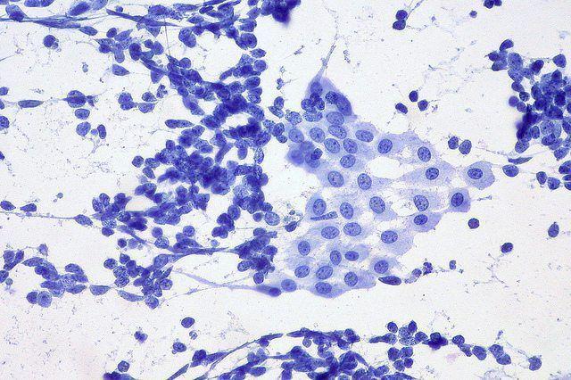 Aspirado pulmonar de un paciente con cáncer de pulmón en el que se muestran células de carcinoma de pulmón de células pequeñas y células mesoteliales benignas. Imagen: Ed Uthman (CC BY 2.0 https://creativecommons.org/licenses/by/2.0/).