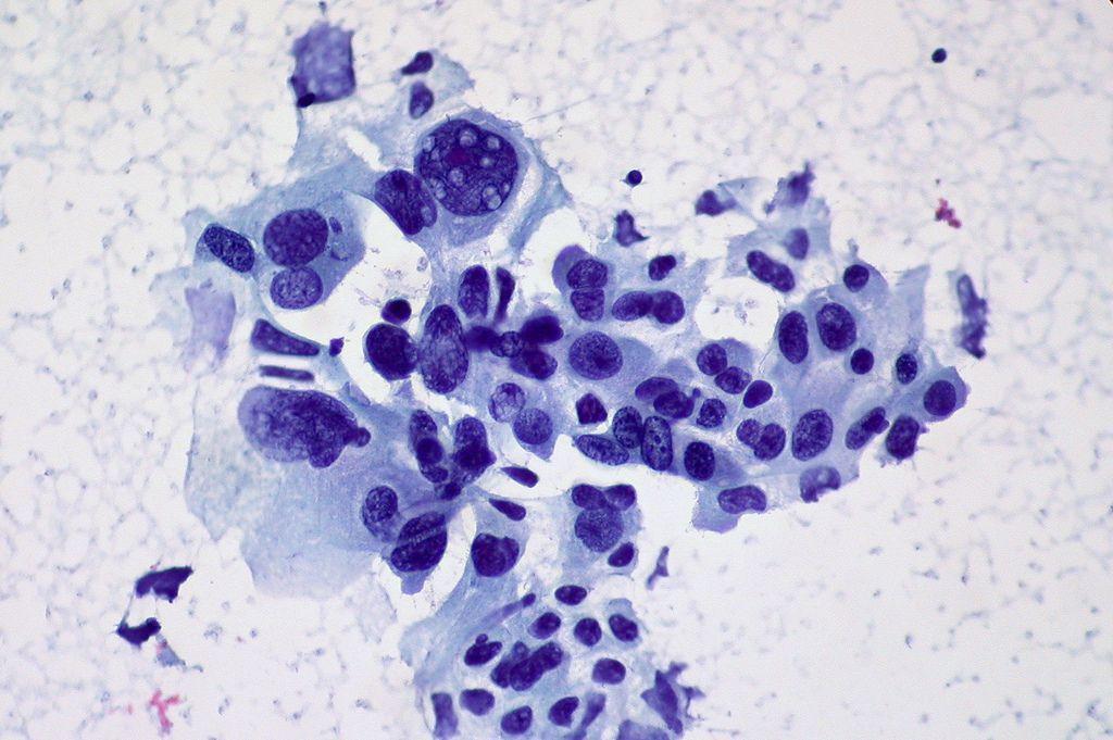 Células de cáncer de pulmón no microcítico. Imagen: Ed Uthman (CC BY 2.0 https://creativecommons.org/licenses/by/2.0/).