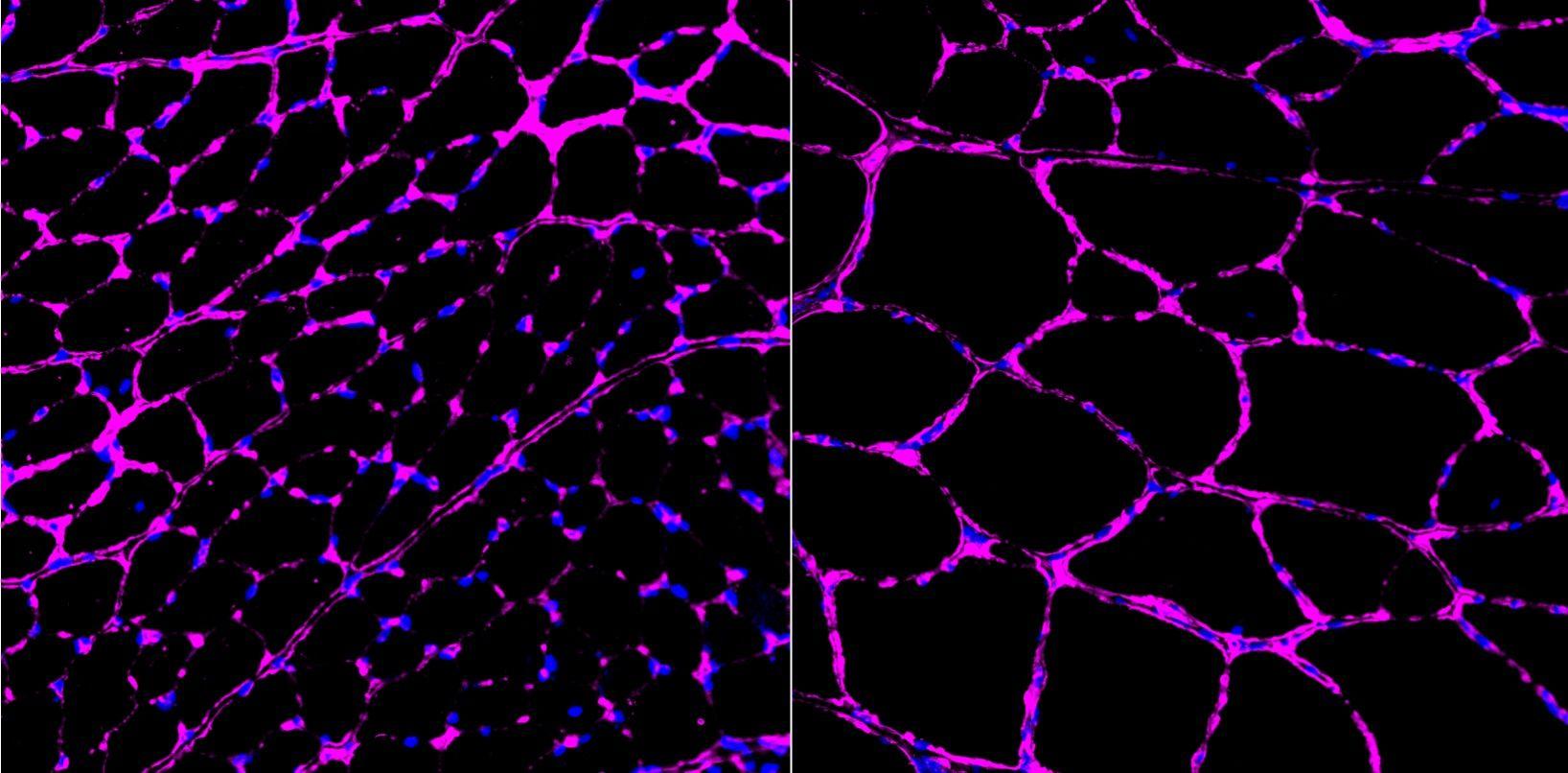 CRISPR epigenoma