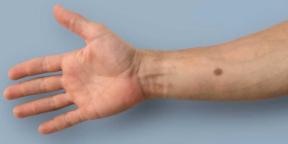 tatuaje biomédico