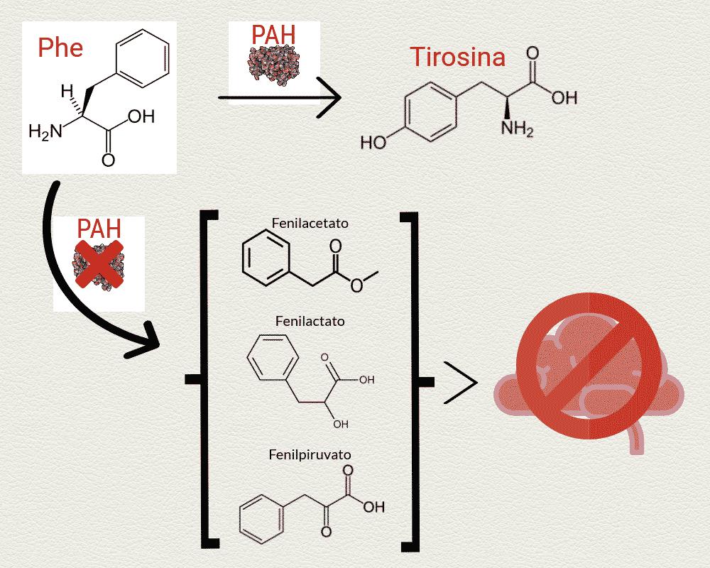 Fenilcetonuria Esquema