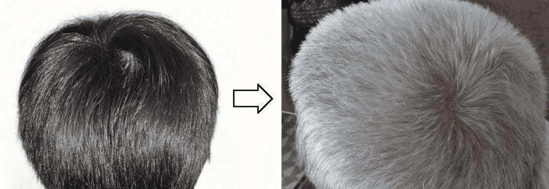 envejecimiento color pelo