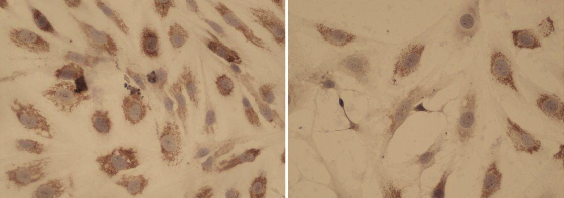 tratamiento mielofibrosis