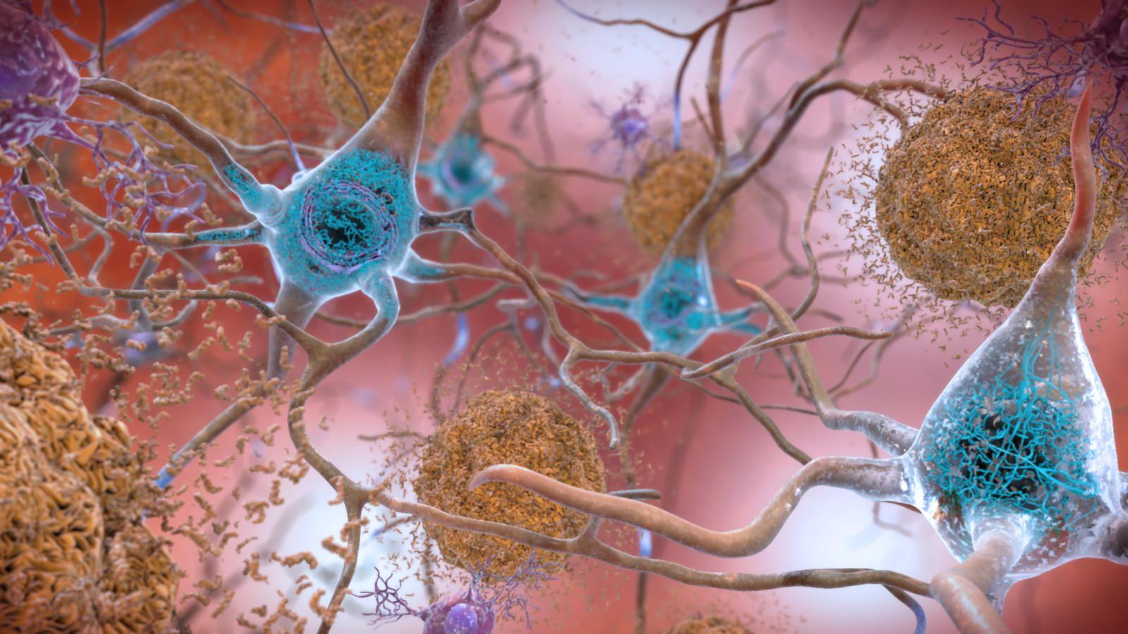 biomarcador Alzheimer
