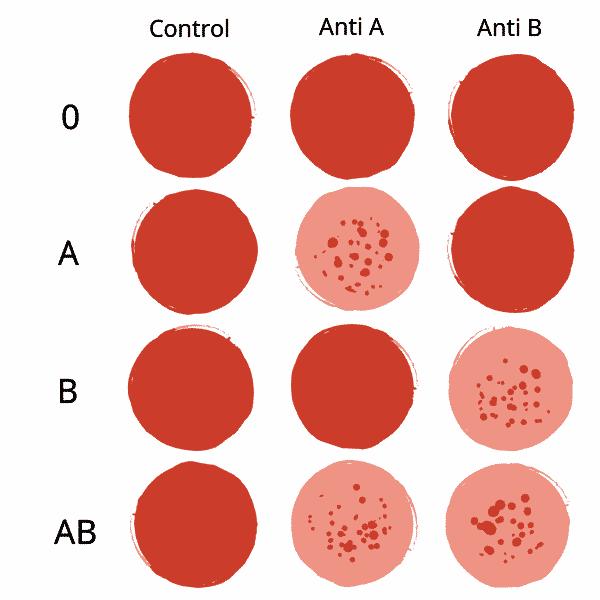 Sobre el grupo sanguíneo o positivo