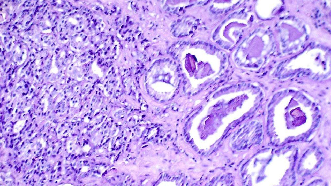 Las muchas opciones para el cáncer de próstata resistente a la castración