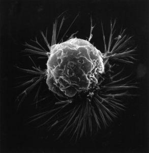 genes cáncer de mama