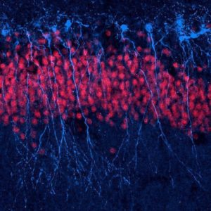 neuronas rompen su ADN