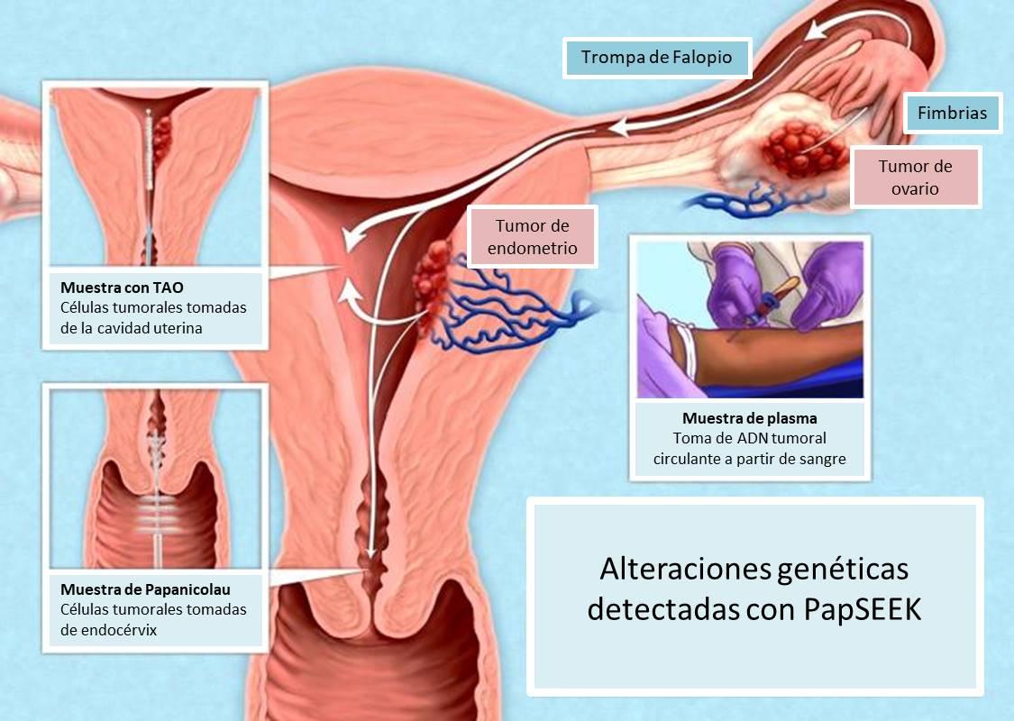 biopsia líquida cáncer ovario