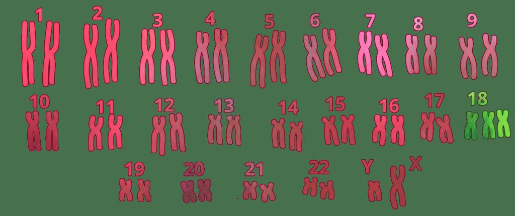 Trisomía, síndrome de Edwards, trisomía 18