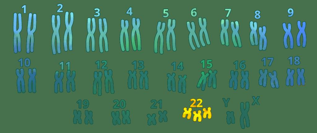 trisomía, trisomía 22