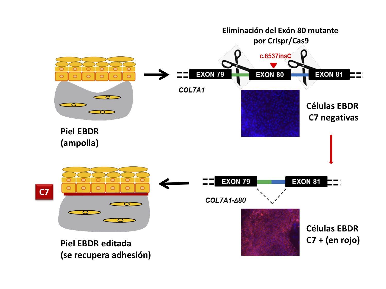 edición genómica epidermólisis