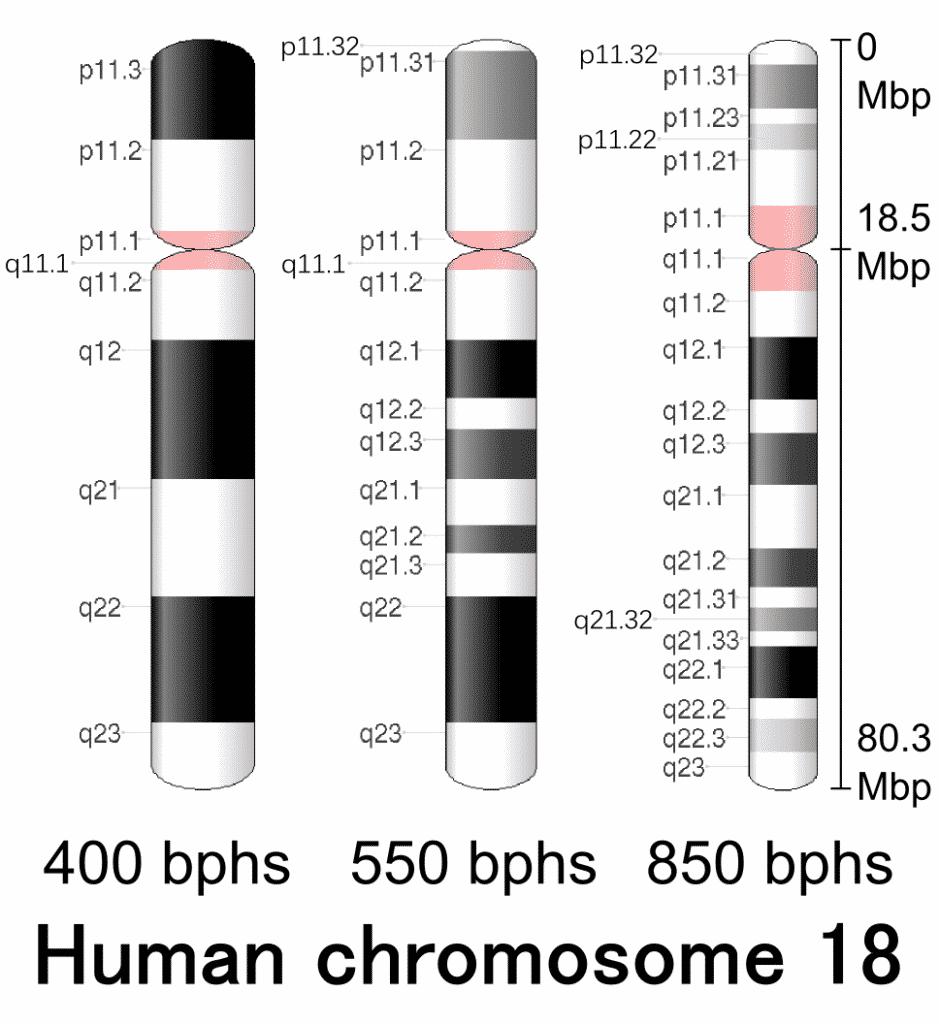 cromosoma 18