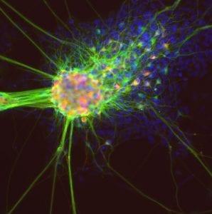 CRISPR células madre