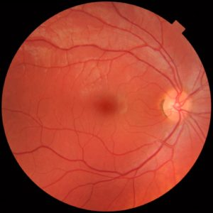 riesgo glaucoma