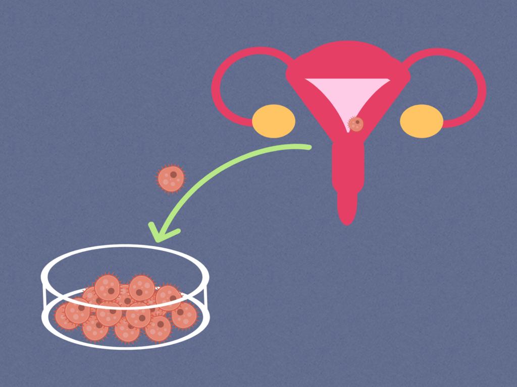 células, cáncer, útero, HeLa, placa