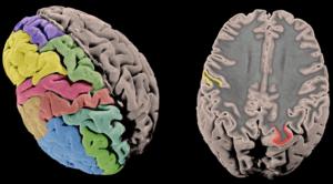 mapa genético corteza cerebral
