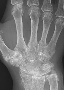 análisis artritis reumatoide