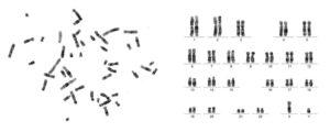 alteraciones citogenéticas líquido amniótico